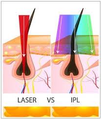 laser v IPL
